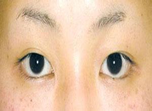 小儿疱疹性角膜结膜炎