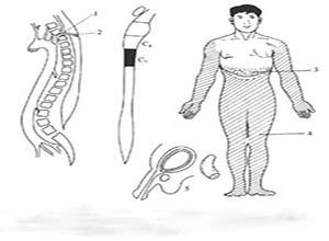 向颈段脊髓供血的根动脉缺血症候群