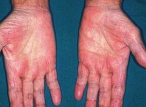 肝炎病毒相关风湿病