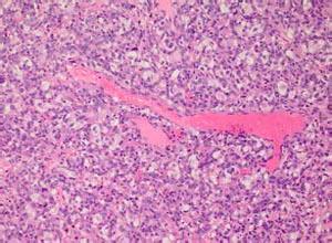 血管母细胞瘤