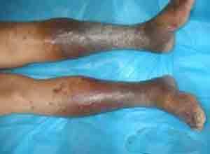 闭塞性血栓性脉管炎