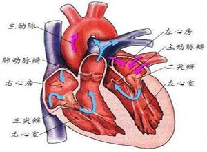 先天性主动脉瓣窦动脉瘤破裂