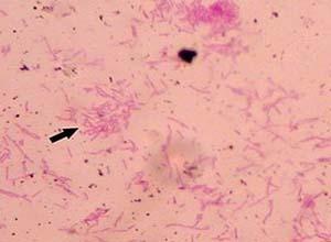 铜绿假单胞菌感染