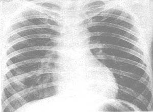 过敏性肺炎