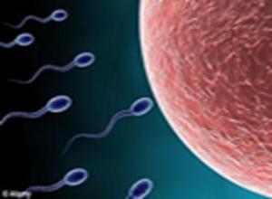 精子增多症