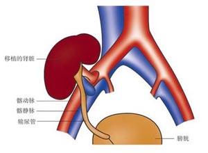 新生儿肾静脉血栓
