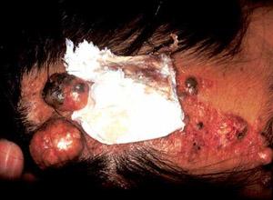 眼睑皮脂腺癌