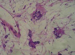 良性脂肪母细胞瘤