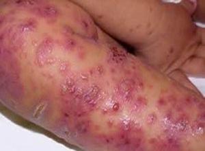 传染性湿疹样皮炎