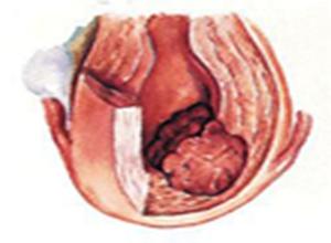 原发性腹膜癌