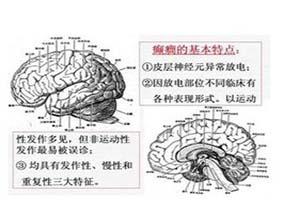 特发性癫痫综合征