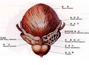 膀胱颈挛缩