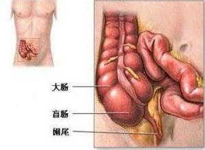 老年人急性阑尾炎