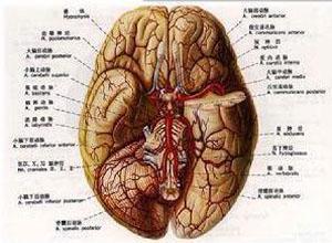 耳内脑膜脑疝
