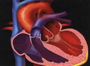 先天性动脉导管未闭