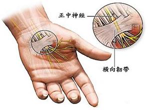 腕管综合征