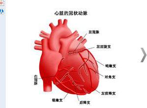 冠状动脉异常起源主动脉