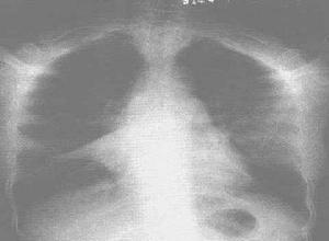 新生儿肺不张