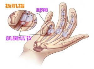 手指屈肌腱鞘炎