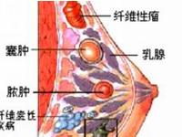 乳腺囊�[
