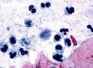 泌尿生殖系滴虫病