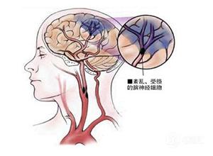脑血管畸形