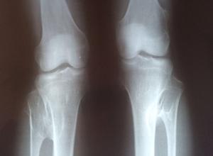 软骨瘤影响发育吗
