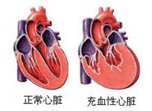 充血性心力衰竭