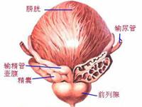 特异性前列腺炎