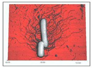 肠道革兰阴性杆菌脑膜炎