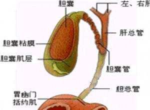 胆道张力低下综合征