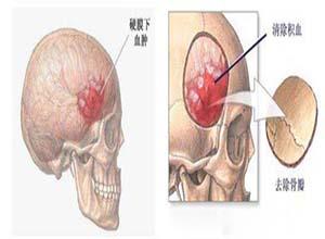 脑外伤后综合征
