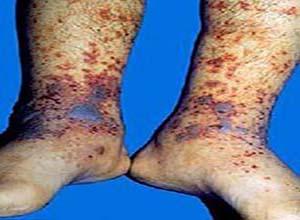 冷球蛋白血症肾损害