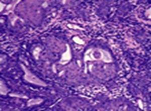 组织细胞纤维瘤