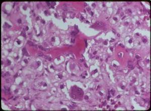 透明细胞软骨肉瘤
