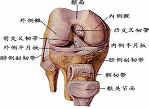 膝关节内侧副韧带断裂