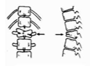 椎体严重楔形变并伴小关节半脱位