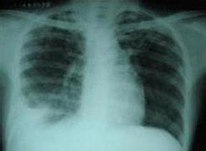 纵隔淋巴结结核-小儿原发型肺结核