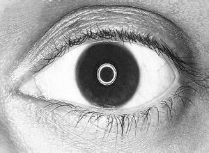 外伤相关性青光眼
