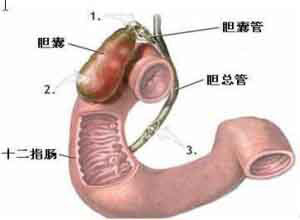 十二指肠炎
