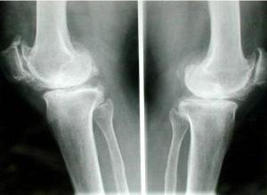 膝关节结核