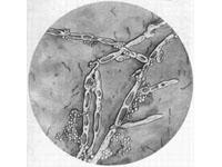妊娠合并生殖器疱疹