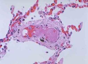 小儿播散性血管内凝血