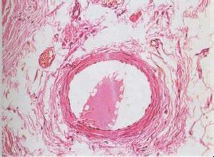 动静脉血管瘤