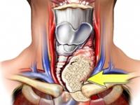 甲状腺乳头癌