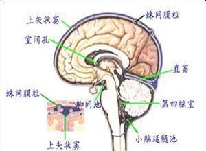 多灶性运动神经病