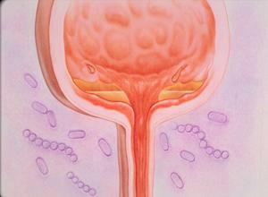 间质性膀胱炎