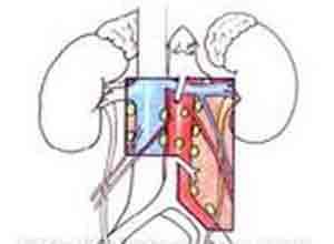 腹膜后淋巴结炎