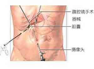 急性化脓性胆管炎