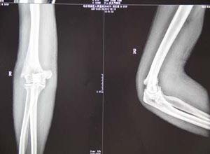 肱骨髁间骨折